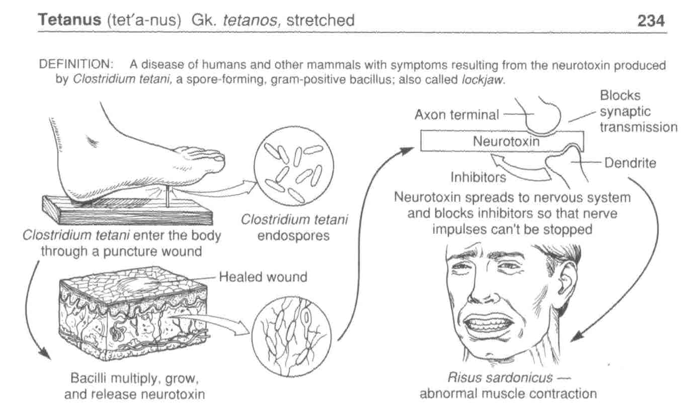 clinical description of tetanus and its causes Tetanus, also called lockjaw, is a serious bacterial infection that affects the nervous system and causes muscles throughout the body to tighten tetanus is a medical emergency that requires immediate treatment in a hospital fortunately , tetanus is preventable through the use of a vaccine however, this vaccine does not.